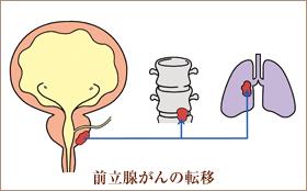 前立腺がん